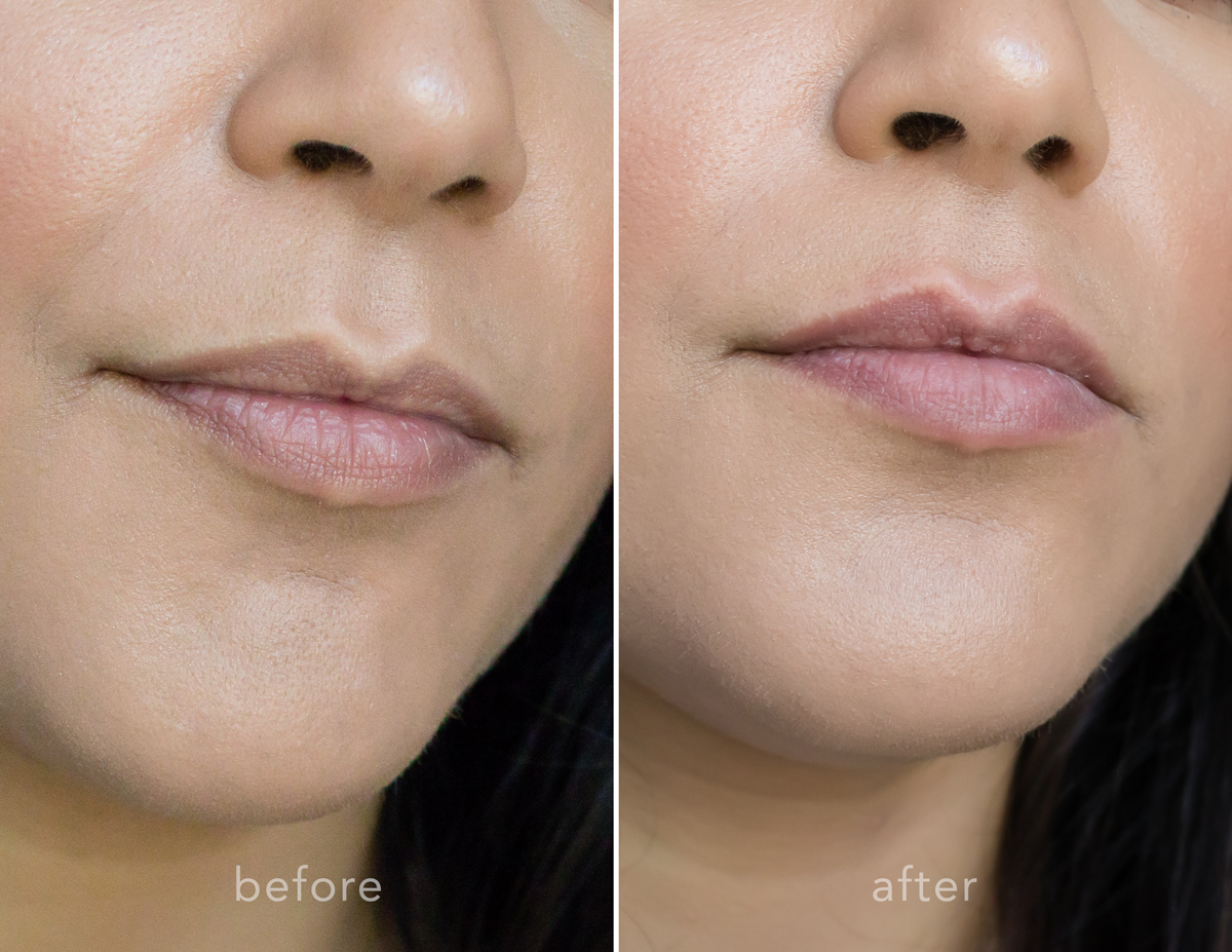 Fuller + Younger Looking Lips with PMD KISS | La La Lisette - before and after PMD Kiss Lip plumping device
