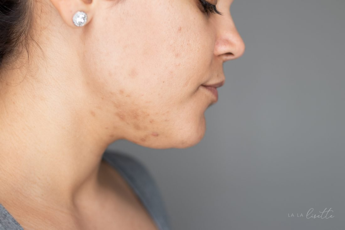 hormonal acne recommendations from a clean beauty esthetician