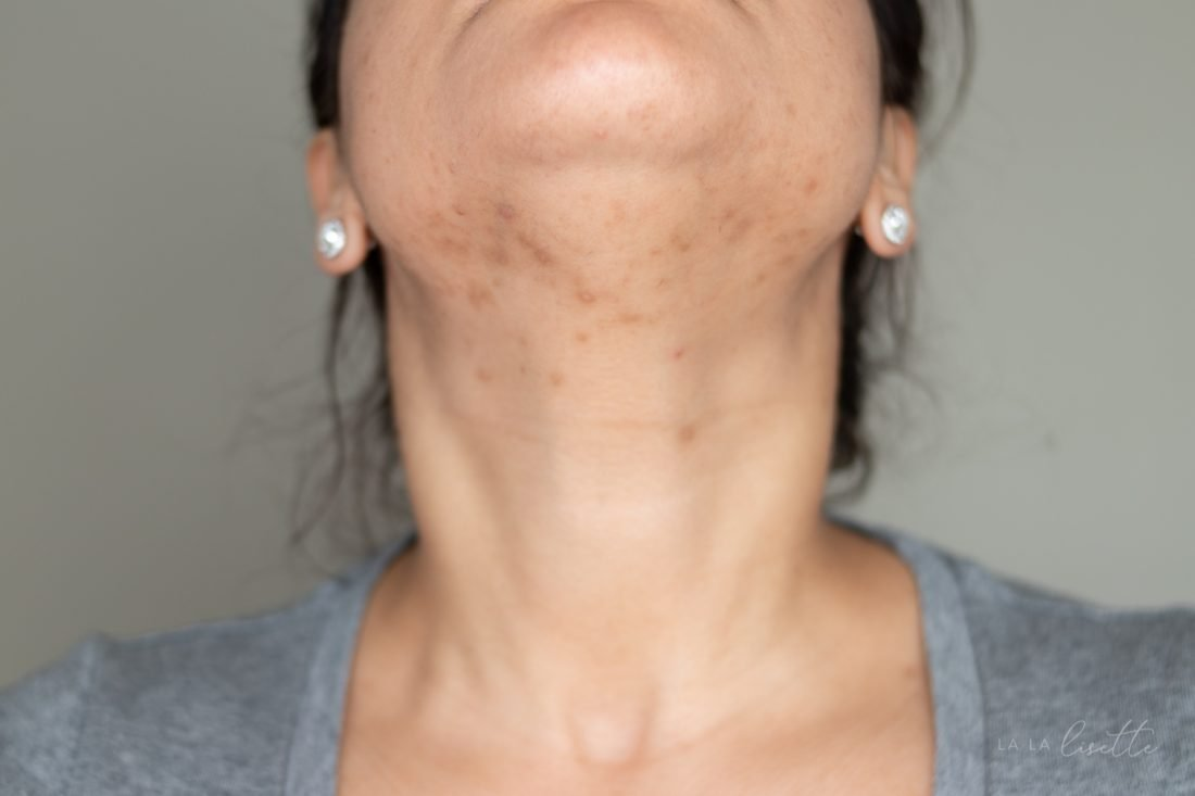 hormonal acne on jawline shown for diagnosis by clean beauty esthetician