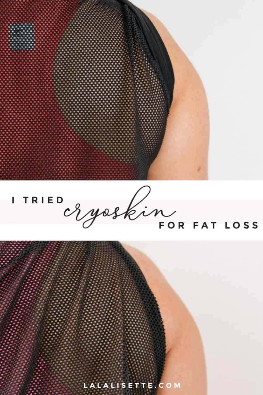 "graphic with text: ""I tried cryoskin for fat loss - lalalisette.com"""